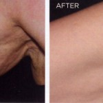 Collagen Stimulation Therapy - Before and After
