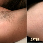 Hair Removal - Before and After