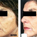 Photo Rejuvenation - Before and After